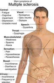 Sclerosis